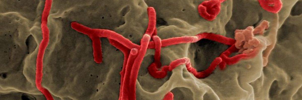 Ebola_Virus_3